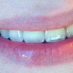 dental-design-servicii_1