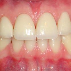 dental-design-servicii_2