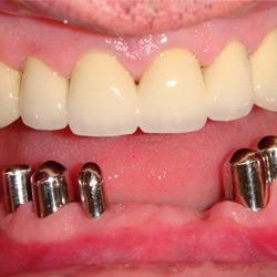 dental-design-servicii_8