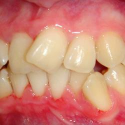 dental-design-servicii_9